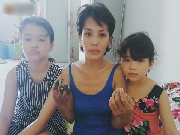 Chồng bỏ đi biệt tích, người mẹ trẻ một nách nuôi 2 con thơ dại với đôi tay hoại tử đã cắt bỏ một bên
