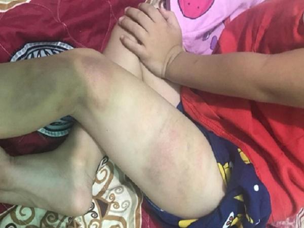 Chồng đánh con 5 tuổi bầm tím người, vợ vẫn bao che 'chuyện gia đình, không ai được xen vào'