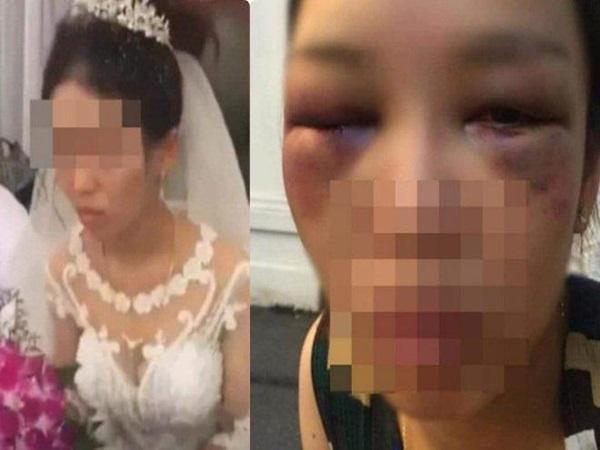 Cô dâu cau có khi chú rể đòi hôn trong đám cưới: Bất ngờ với gia cảnh của hai bên qua tiết lộ của hàng xóm