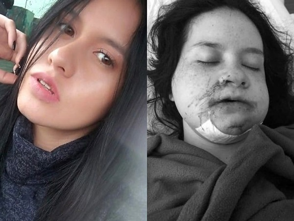 Cô gái xinh đẹp mất hết răng, gãy xương khắp người sau khi bị tình cũ bắt cóc, ép 'phục vụ' liên tục 8 ngày
