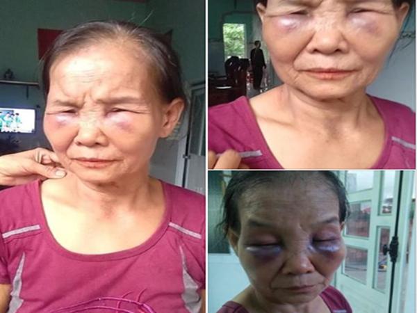 Con dâu đánh mẹ chồng bầm mắt ở Bình Phước: Bị chửi bới đụng chạm tổ tiên gia đình nên bức xúc