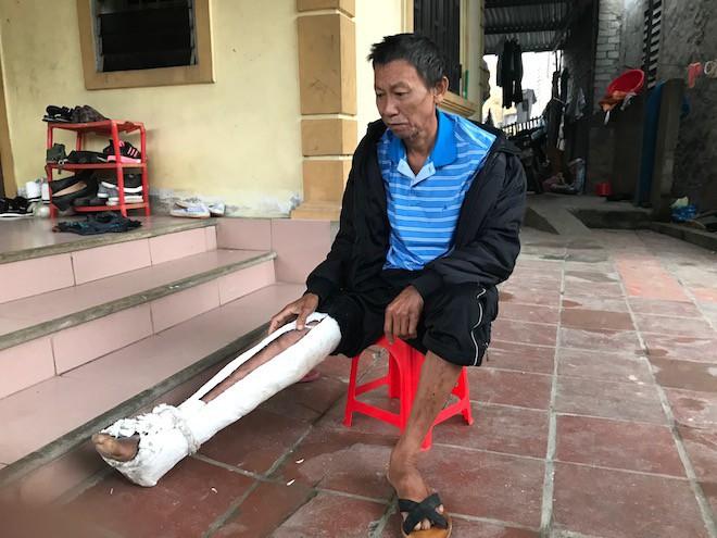 Con trai đánh cha gãy xương, cả người bầm tím: Nghi ngờ cha trộm tiền, mang xăng định đốt chết