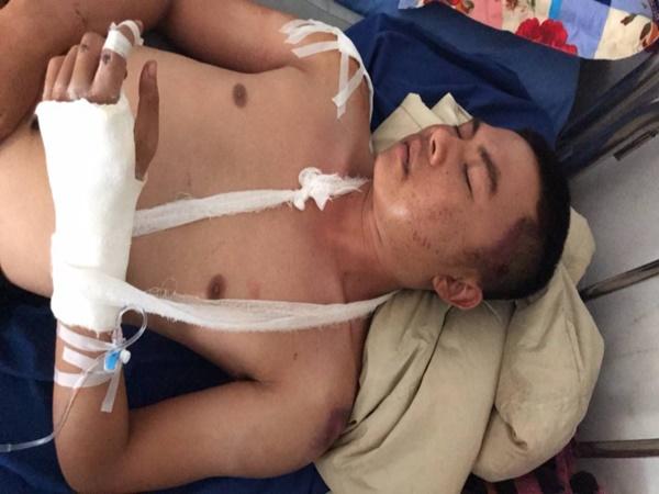 Đi đòi nợ, nam thanh niên ở Đắk Lắk bị đánh nhập viện