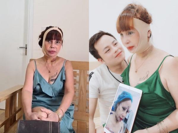 Diện mạo mới của cô dâu 62 tuổi sau 3 ngày đại phẫu kéo căng da mặt: Chiếc miệng méo xệch khiến nhiều người hoang mang