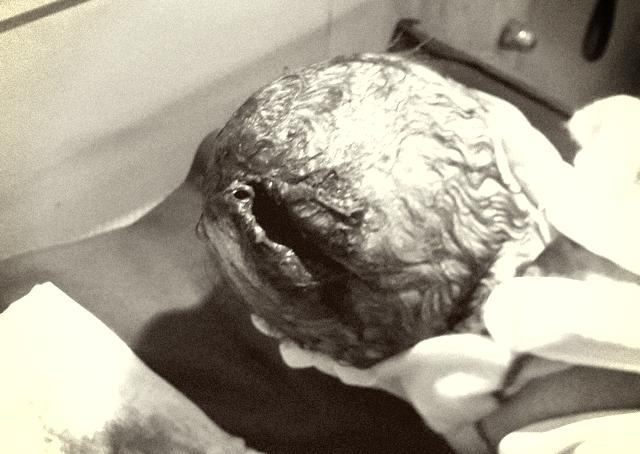 Đỡ đẻ thành công thai nhi bị dao đâm thủng đầu - Ảnh 1
