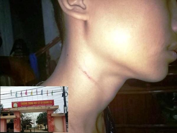 Hiệu trưởng bị tố bóp cổ, dúi đầu học sinh vào tường