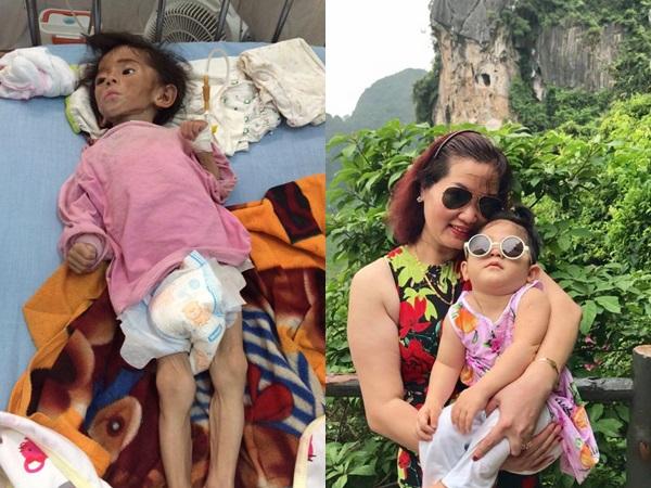 Hình ảnh mới nhất của bé gái suy dinh dưỡng ở Lào Cai: Bụ bẫm, đáng yêu khiến nhiều người vui lây