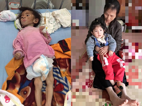 Hình ảnh mới nhất của bé gái Lào Cai bị suy dinh dưỡng: Cằm nhọn, cao lớn không nhận ra