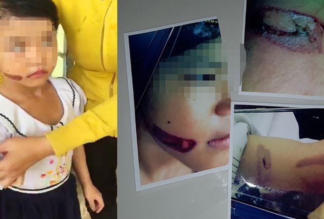 Sẽ khởi tố vụ bé 7 tuổi nghi bị mẹ kế dí sắt nung vào mặt