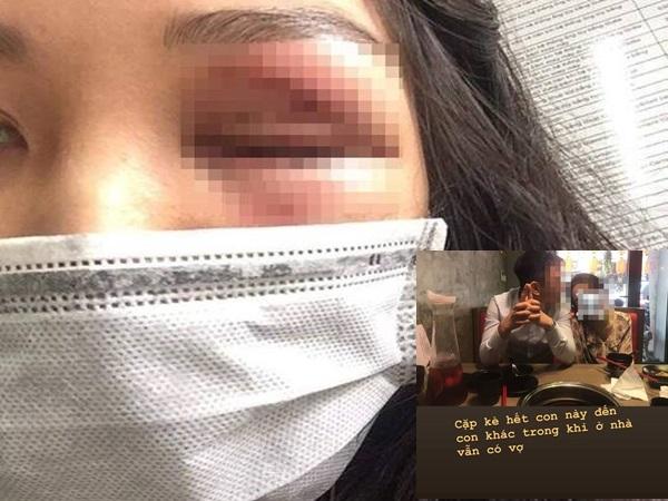 Lỡ mang bầu, vợ bị chồng đánh đập, ép bỏ con: 'Không bỏ thai thì tao sẽ bỏ mày'