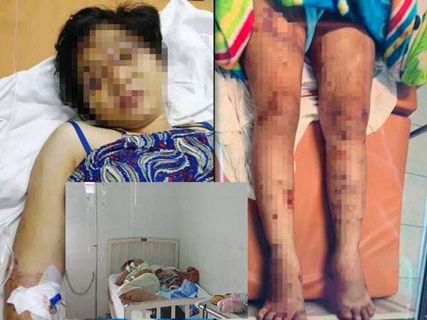Lời kể kinh hoàng của thai phụ 18 tuổi bị tra tấn đến sảy thai: 'Em không dám nhớ lại quá trình bị hành hạ, bọn chúng thật độc ác'