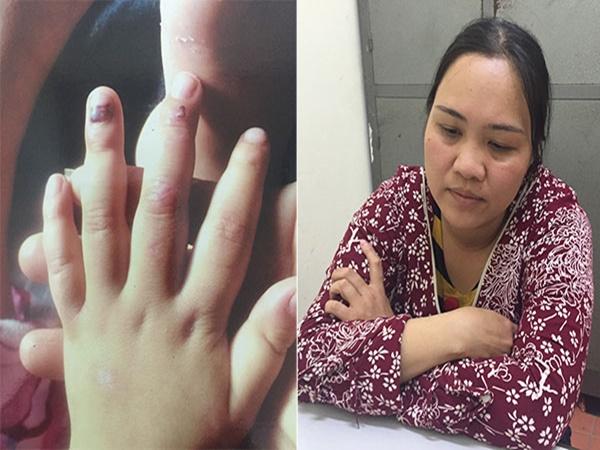 Mẹ hờ bạo hành con của chồng, khắp cơ thể chi chít vết thương
