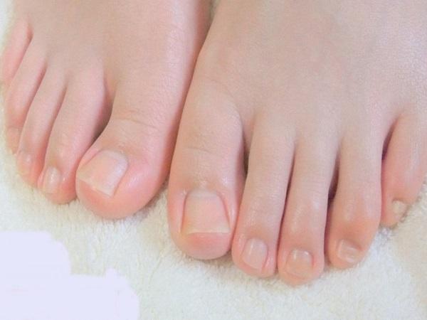 Muốn biết nội tạng có nhiễm bệnh không chỉ cần nhìn xuống bàn chân, có 3 tín hiệu thì cần phải đi khám khẩn cấp