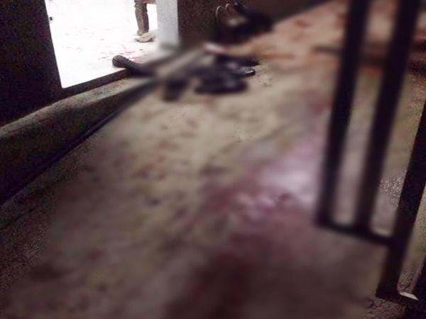 Bắc Giang: Nghi án nam thanh niên bị 3 người chém gần đứt lìa tay vì mở nhạc quá to