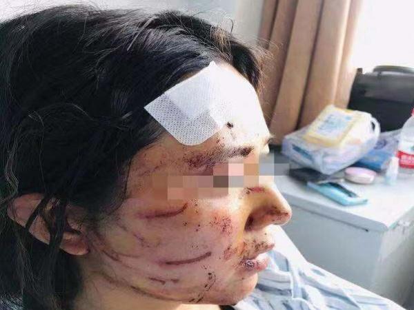 Nghi vợ ngoại tình, chồng cùng bố đánh ghen theo cách kinh dị khiến nạn nhân phải nhập viện