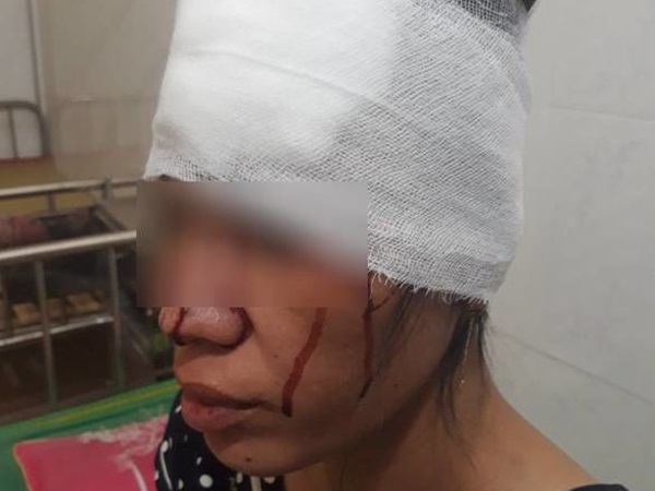 Người phụ nữ khuyết tật mang thai 8 tháng bị người cùng xã hành hung đến nhập viện