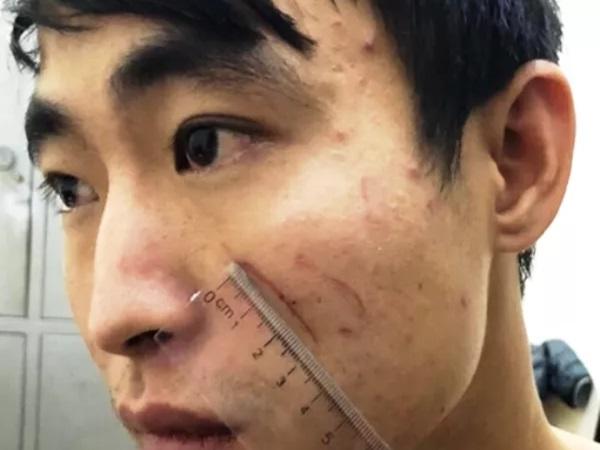 Nữ sinh 18 tuổi bị người yêu sát hại tại nhà nghỉ: Lời khai gây phẫn nộ của hung thủ