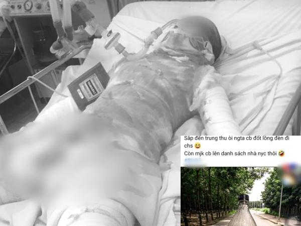 Thiếu nữ 15 tuổi bị bỏng 95% cơ thể nghi do bị bạn trai tưới xăng đốt: Rùng mình bài đăng Facebook của nghi phạm trước khi ra tay