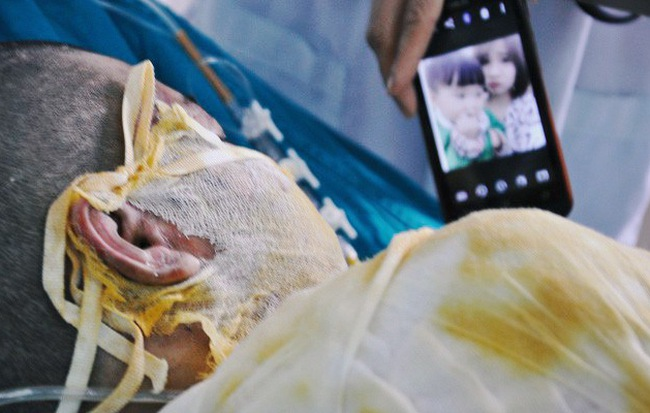 Vụ 2 cô gái bị thiêu sống ở Vĩnh Phúc: Nằm trên giường bệnh, người mẹ đau đớn nhìn con qua màn hình điện thoại cho vơi nỗi nhớ