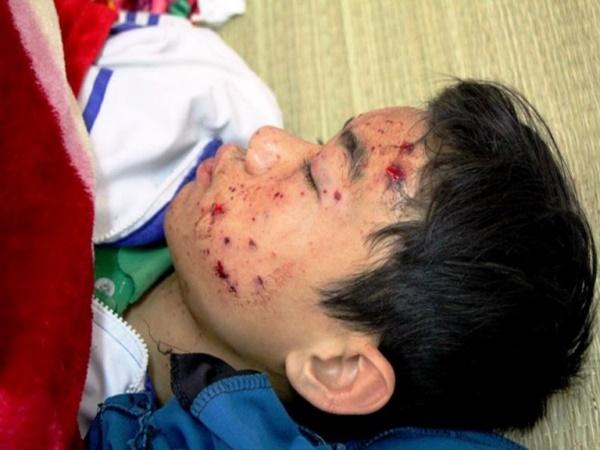 Dùng điện thoại khi sạc, nam sinh bị thương nặng trong ngày giáp Tết - Ảnh 1
