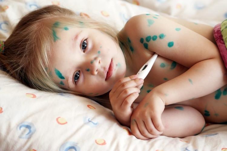 Bệnh thủy đậu ở trẻ em có nguy hiểm không? Biểu hiện và các chữa trị hiệu quả