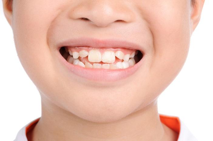 Những kiểu răng mọc lệch hàm trên thường gặp nguyên nhân và cách xử lý