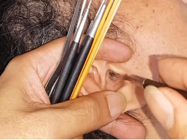 Sùi mào gà mọc trong lỗ tai vì thường xuyên ngoáy tai ngoài tiệm