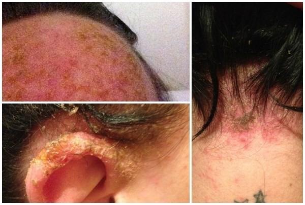 Nguy cơ hói đầu, ung thư vì thuốc nhuộm tóc: Dùng ngay dầu gội Sắc Mun an toàn, hiệu quả hơn - Ảnh 1