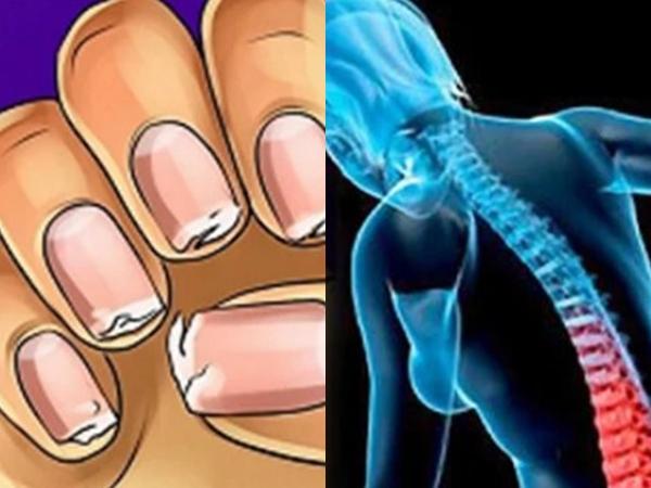 5 dấu hiệu cảnh báo cơ thể đang thiếu canxi trầm trọng, cần bổ sung ngay