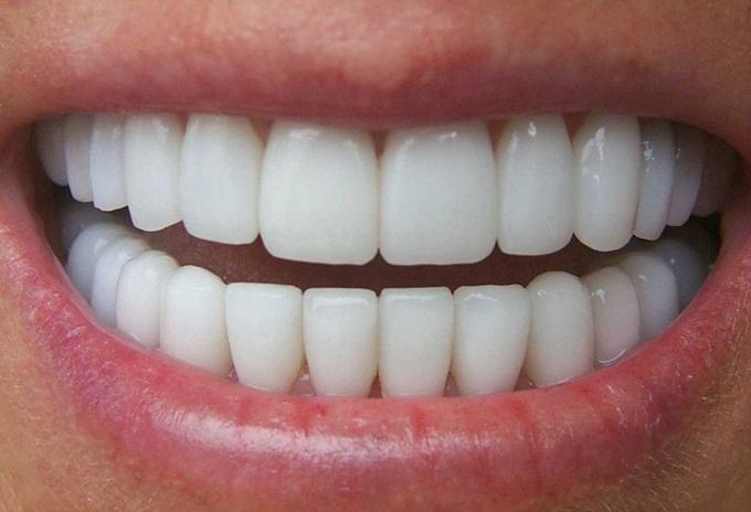 Cao răng tự tróc ra từng mảng, răng trắng bóng như đi bọc sứ, cả năm không cần đi nha sĩ chỉ nhờ nắm rau 2k 1 mớ bán đầy ngoài chợ này - Ảnh 1