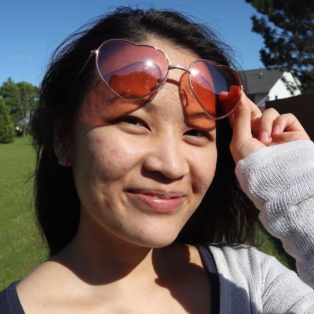 Beauty blogger cảnh báo: Chị em đang huỷ hoại chính làn da của mình ngay từ bước tẩy trang - Ảnh 4