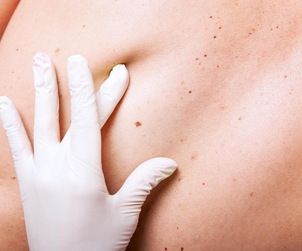 Những dấu hiệu tưởng đơn giản nhưng cảnh báo ung thư ở phụ nữ - Ảnh 3