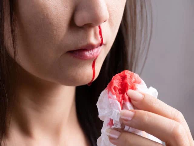 5 vị trí cơ thể này nếu bất ngờ chảy máu thì coi chừng bạn đã mắc ung thư từ lâu mà không biết - Ảnh 1