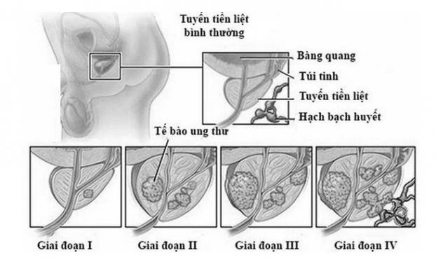 6 thói quen dẫn đến ung thư tuyến tiền liệt rất nhiều đàn ông Việt mắc phải - Ảnh 1