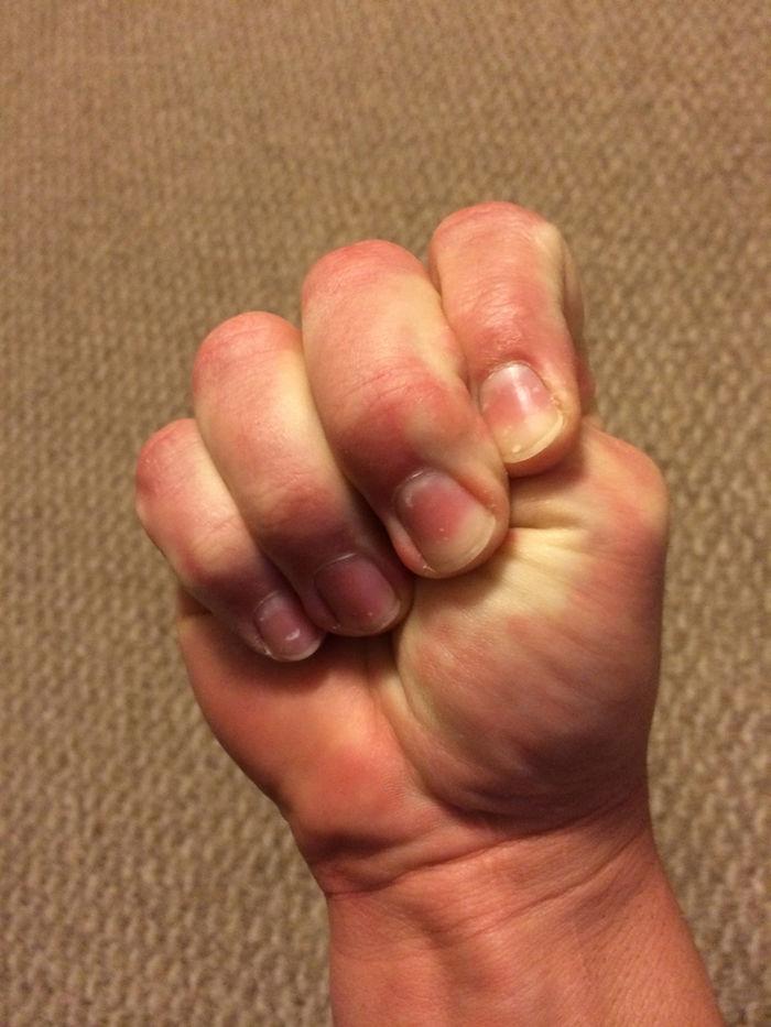 Mẹo đẩy lùi các triệu chứng, cơn đau thường gặp của cơ thể mà không cần dùng thuốc - Ảnh 3
