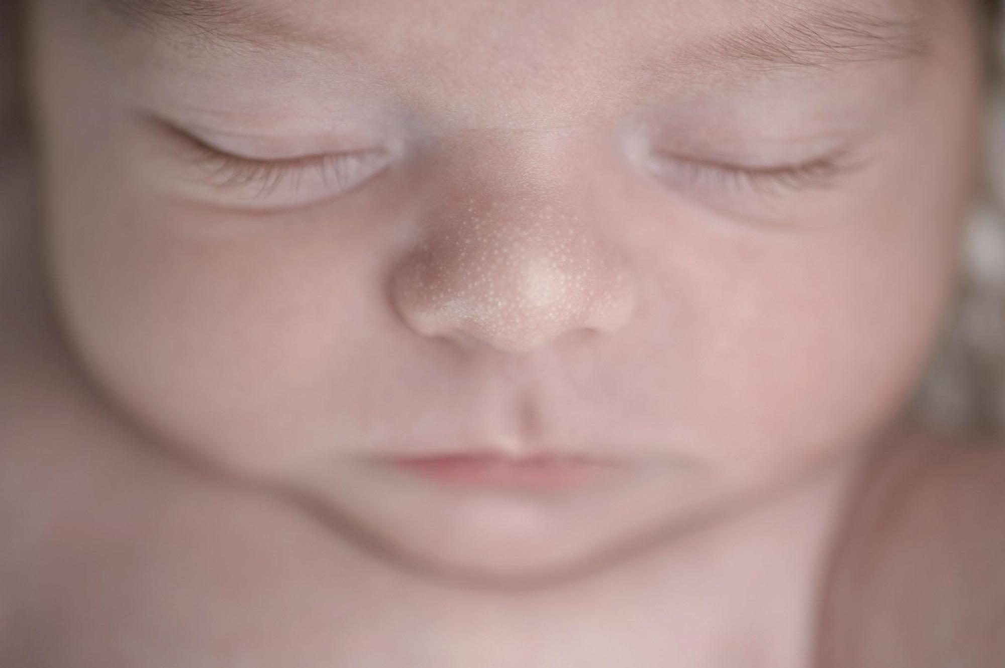 Làm gì khi trẻ sơ sinh bị kê? - Ảnh 1