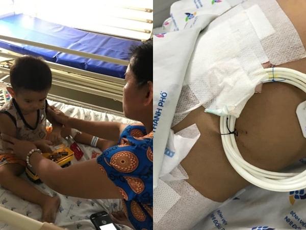 Bé trai 2 tuổi suýt chết vì uống nhầm axit đựng trong chai trà xanh