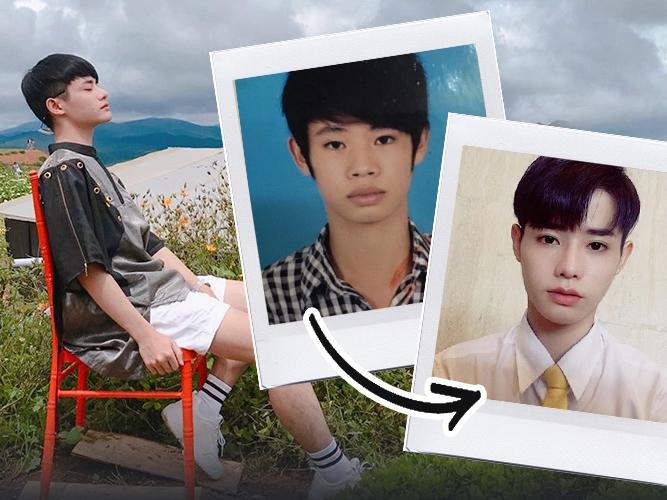 """Bị chê mũi tẹt - răng hô - da đen nhẻm xấu xí, chàng trai dành 6 năm để """"ủ mưu"""", cuối cùng khiến cộng đồng mạng trầm trồ trước nhan sắc đẹp tựa idol Hàn Quốc sau 4 lần thẩm mỹ với chi phí """"gây sốc"""""""