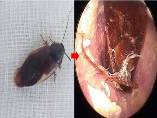 Bị gián chui vào tai trong lúc ngủ, cần xử trí thế nào khi côn trùng chui vào tai?