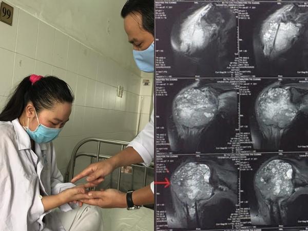 Bị ngã chấn thương tay nhưng đi thầy lang bó thuốc, người phụ nữ suýt tàn phế vì mang căn bệnh nguy hiểm ở xương