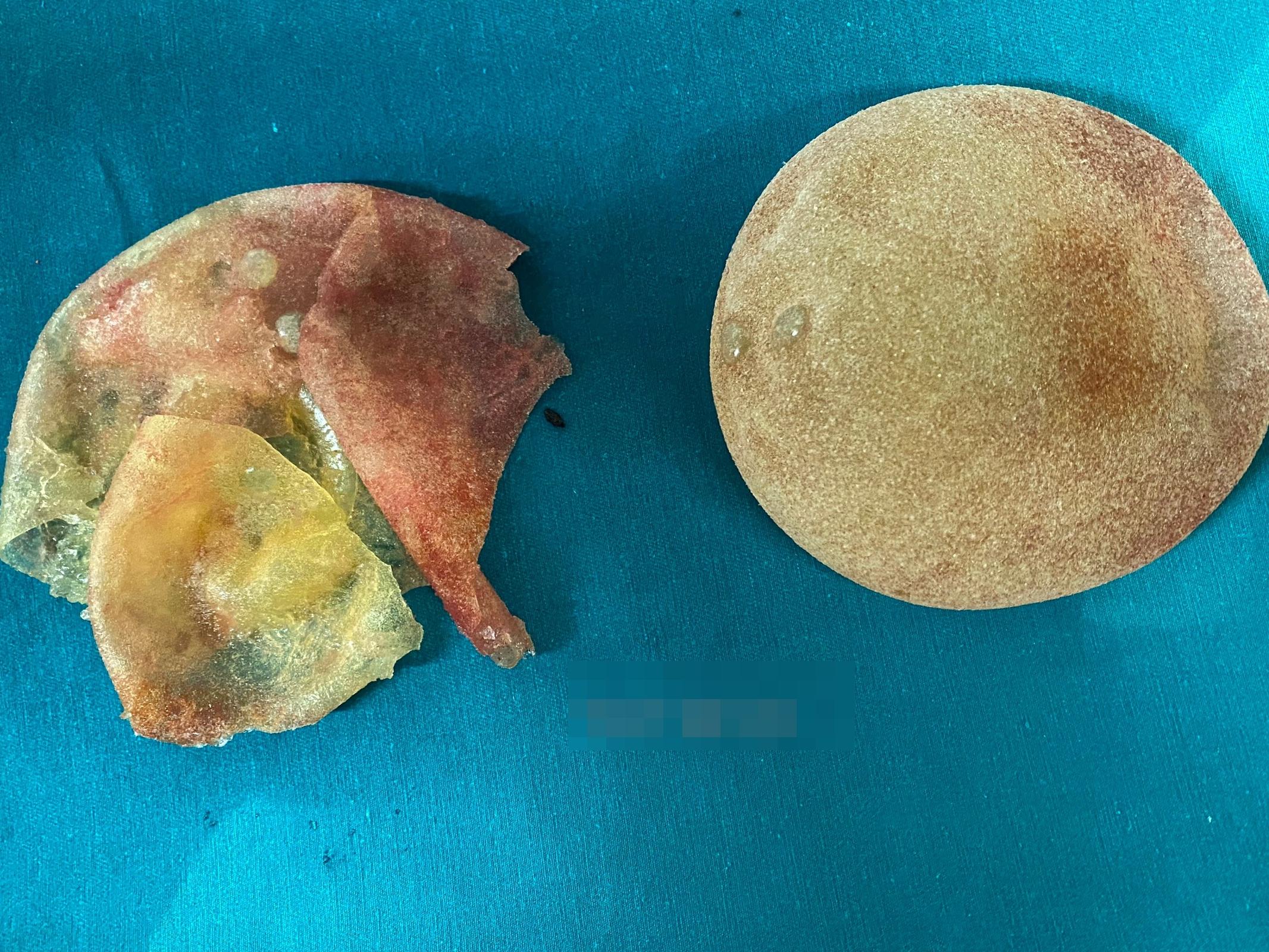 Nâng ngực bằng túi nhám hình giọt nước, 5 năm sau đi khám lại người phụ nữ mới biết túi ngực đã bị vỡ từ bao giờ