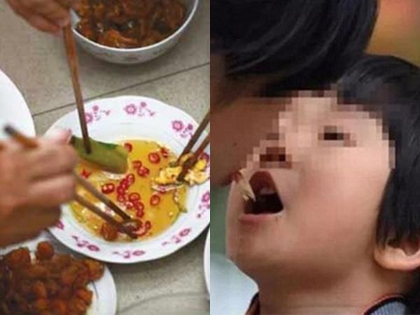 3 căn bệnh truyền nhiễm lây truyền qua đường ăn uống, người Việt rất dễ mắc