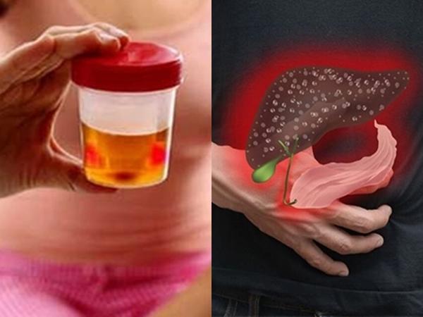 3 dấu hiệu bất thường khi đi vệ sinh cảnh báo bệnh gan, số 2 rất nhiều người Việt mắc phải