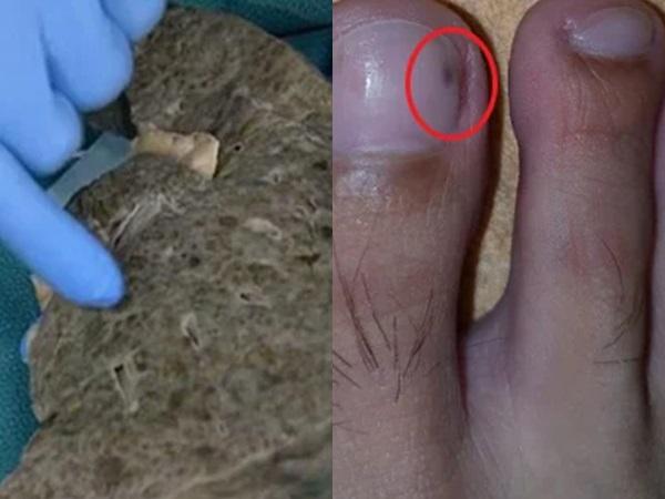 4 dấu hiệu ở bàn chân báo hiệu gan đang bị bệnh, rất nhiều người có nhưng đều bỏ qua