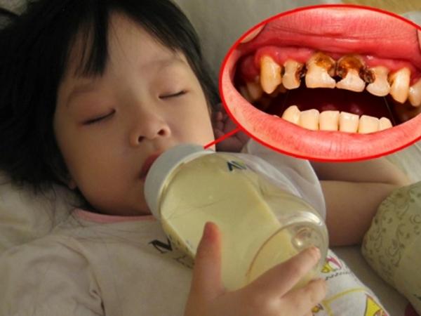 5 thói quen gây sâu răng, hô răng ở trẻ, cha mẹ cần uốn nắn ngay kẻo muộn