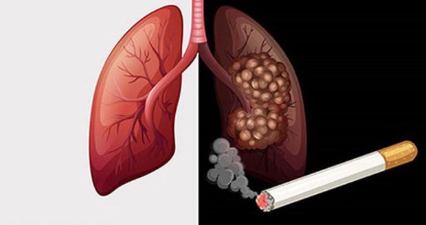 Tế bào ung thư 'thích' bạn làm 4 điều nhất mỗi ngày, không sửa ngay thì sớm rước bệnh vào người - Ảnh 1
