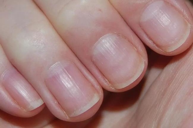 Người nhiều bệnh tật, sức khỏe kém thường có 5 dấu hiệu này trên bàn tay: Càng sớm khắc phục, tuổi thọ của bạn càng kéo dài! - Ảnh 3