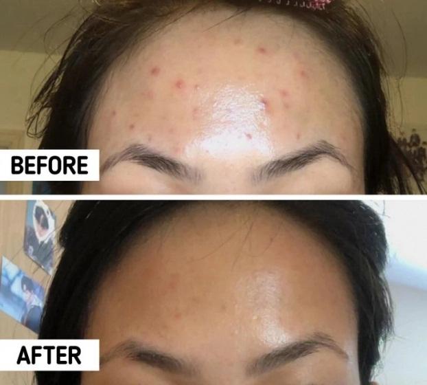 10 mẹo se khít lỗ chân lông giúp bạn lấy lại làn da tươi sáng, khỏe đẹp - Ảnh 3