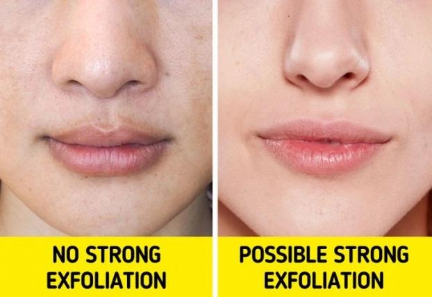 10 mẹo se khít lỗ chân lông giúp bạn lấy lại làn da tươi sáng, khỏe đẹp - Ảnh 10