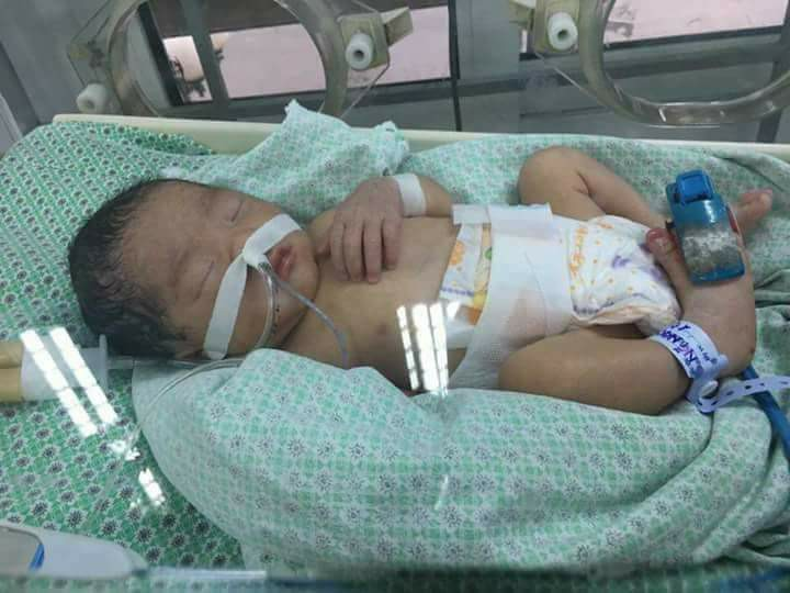 Bé gái 32 tuần tuổi nghi bị mẹ đặt thuốc để ép sinh non đang giành giật sự sống - Ảnh 1